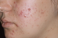 Acne problem is easy to cure