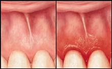 Healing Gum Disease Naturally Reviews