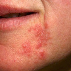 Natural Face Wash For Perioral Dermatitis
