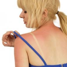 Sunburn relief using Home Remedies solution