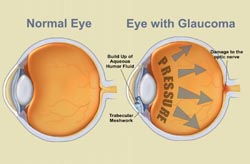 Eye Glaucoma
