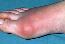 Gout on toe