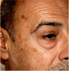 Age spots usually visible on our body when getting old