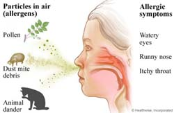 Allergies Remedies