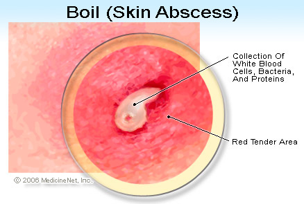 Boil is skin abscess