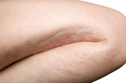 woman leg with cellulite