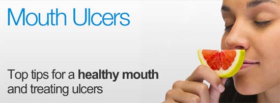 Tips to relieve mouth ulcers