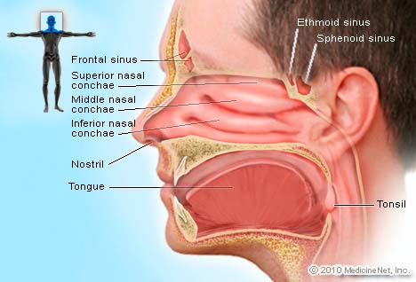 Sinusitis picture diagram